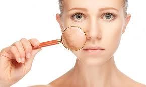 Postpartum skin issues, postpartum skin problems, postpartum acne